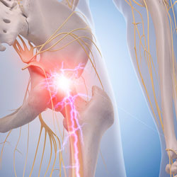 Management of Sciatic Nerve Pain